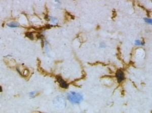 Brain Tissue Microglia