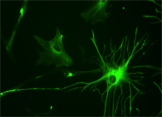 Human brain astrocyte labeled with green fluorescence