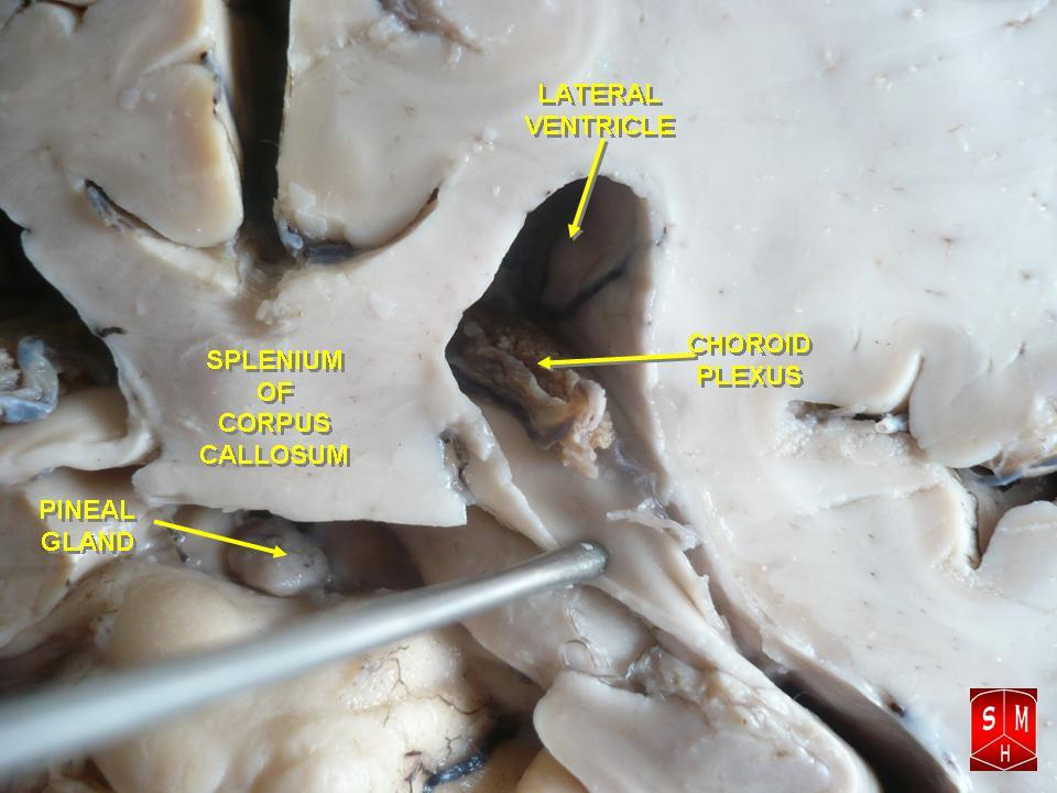 choroid plexus in lateral ventricle of human brain