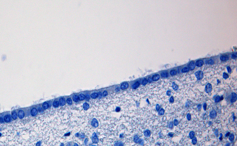 Tissue section of human brain showing ependymal cell layer