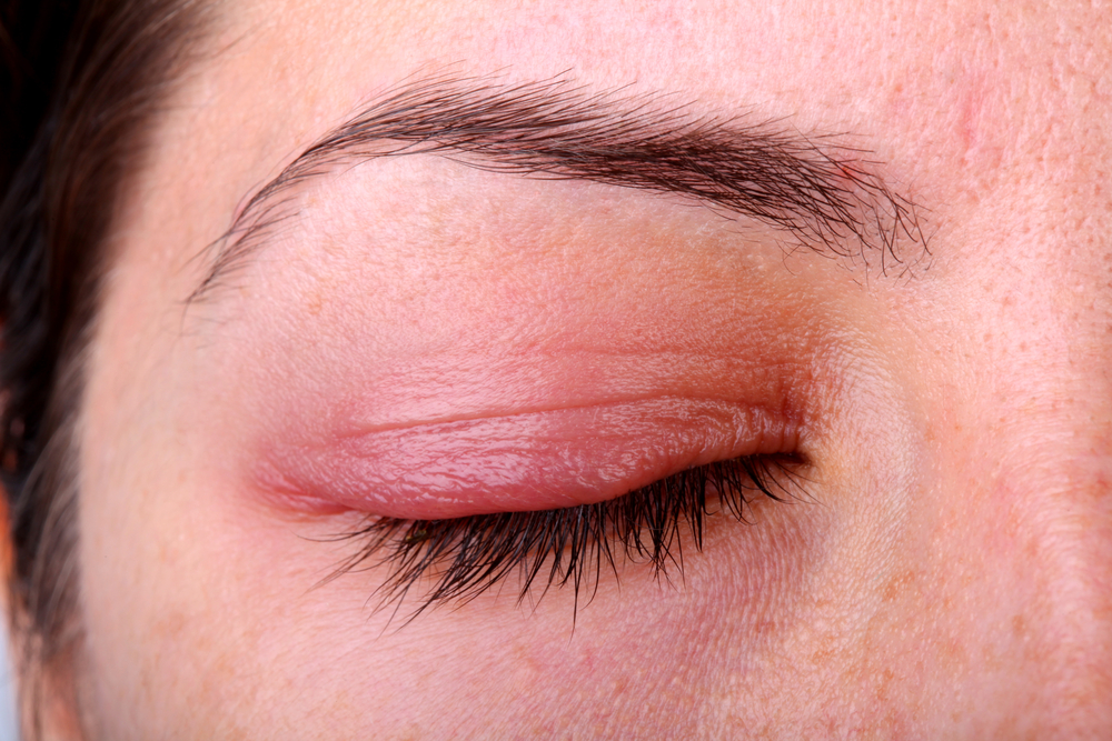 Eyelid showing inflamed tissue