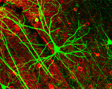 Photomicrograph of a cortical neuron