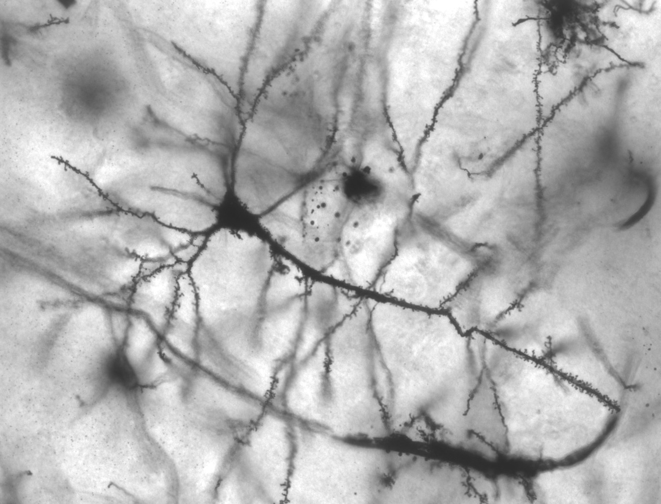 Photomicrograph of dendrites of hippocampus neuron showing dendritic spines